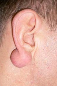 Ateroma uz ausies