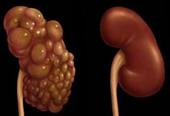 hipertenzija nuo inkstų cistų
