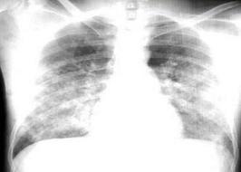Plautinė hipertenzija