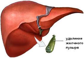 Šlapimo pūslės uždegimas (cistitas) - simptomai, gydymas   Homosanus